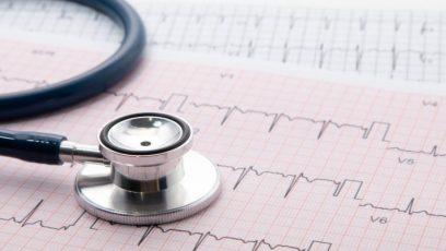 Hjerte EKG